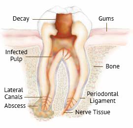 Root Canals | Pacific Dental Care